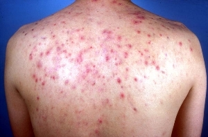 What Causes Back Acne