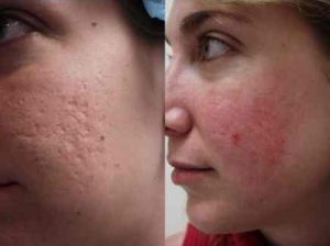 Natural Face Treatments For Acne Scars