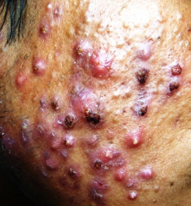 steroid cream cystic acne