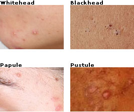 how to get rid of whiteheads - a quick treatment guide, Skeleton