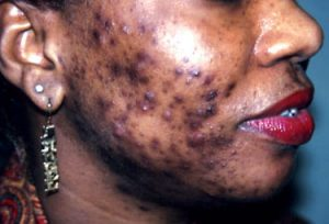 bacteria that causes acne #10